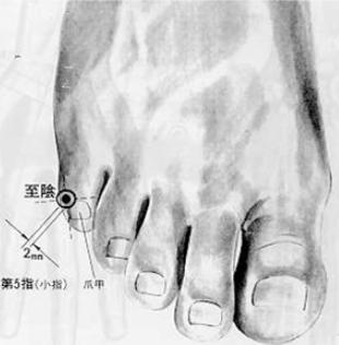 Arrive au yin, 至隂 zhìyīn, est le 67e et dernier point du méridien de la vessie.