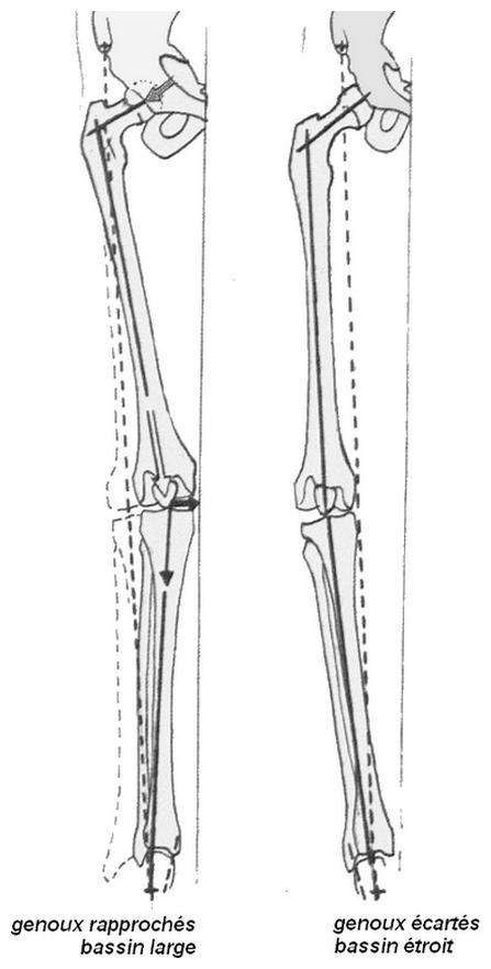 Stabilité latérale