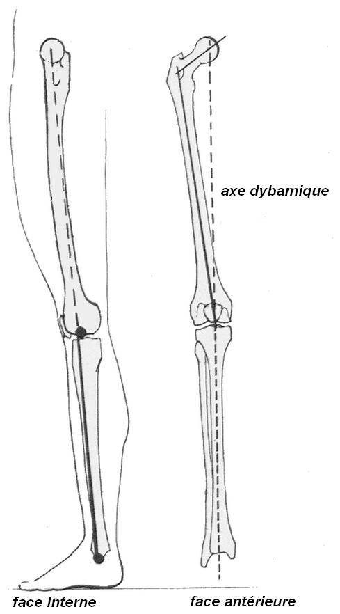Illustration de l'axe dynamique du membre inférieur