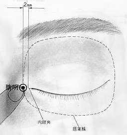 Éclat de la prunelle est le premier point du méridien de la vessie.