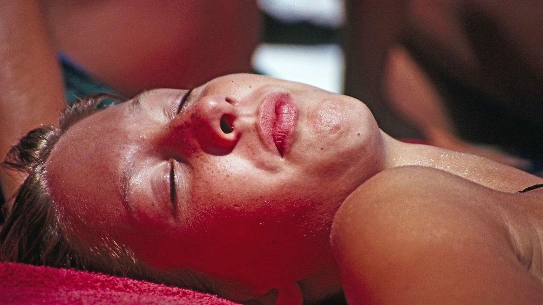 Cómo recuperar la piel quemada por el sol