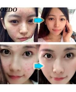 Crema-reparación-facial-poros-marcas-de-acné-extracto-de-hierbas-milagrosa