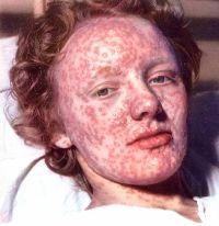Все о прививке против оспы когда делают вакцинацию и остается ли шрам