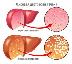 Как лечить дистрофию у взрослых. Дистрофия тела, степени дистрофии