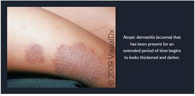 Atopic Eczema and The Ethnic and Racial Disparities In Care-Tiffany D. Brown