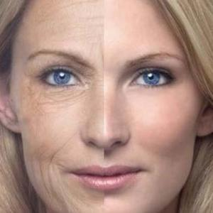 SmartSkin C02 Fractional Resurfacing