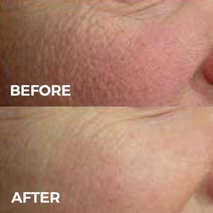 Skin Rejuvenation with Laser Genesis