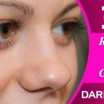 Get Rid of Dark circles