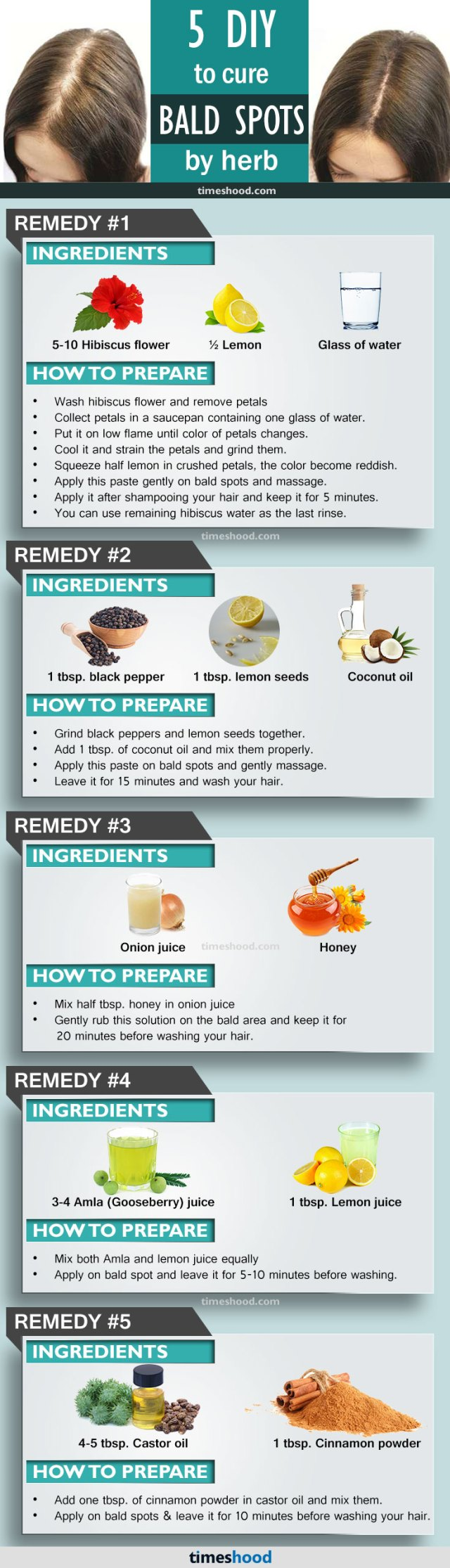 How to regrow hair on bald spot fast. Get rid of baldness. Check out these 5 DIY home remedy to grow hair on bald spot. Stop baldness and regrow hair naturally.