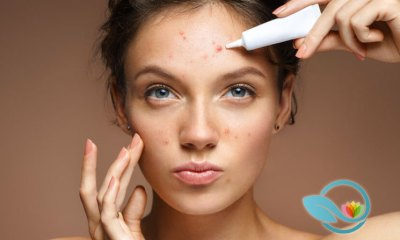 Top Acne Treatments: Find the Best Skin Care Products and Systems Available