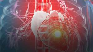Consuming a diet high in low-quality carbohydrates associated with heart attacks, risk of death |  News