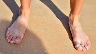 Stephanie Casey shows wear and tear on her toes after taking second in the U.S. women's 50K in 5 hours, 4 seconds