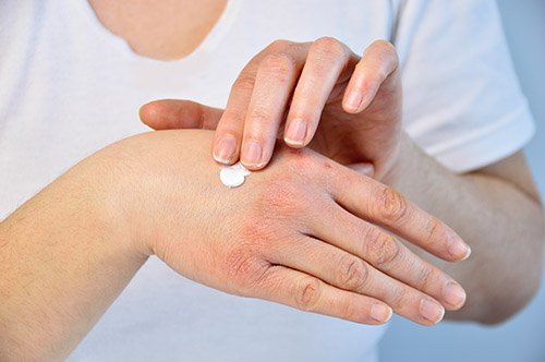 Home Remedies for Dry Hands Caused Due to Washing Hand Frequently With Soap