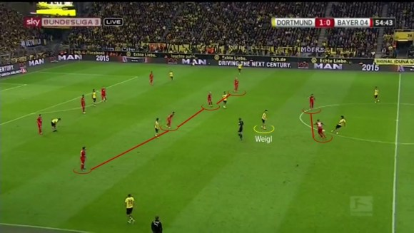 Another example of Weigl positioned between the lines