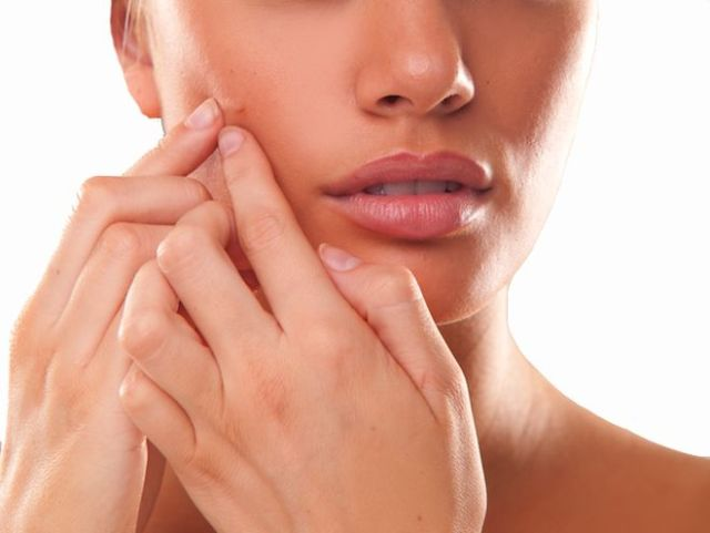 what causes acne - picking pimple