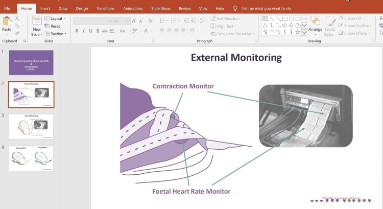 Monitoring and Assisted Births - PowerPoint Presentation