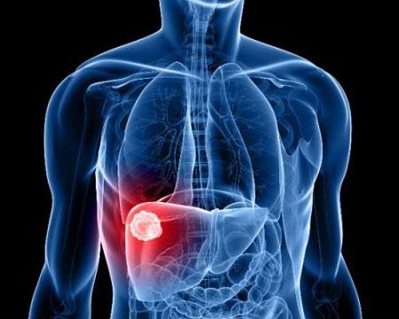Bảo vệ lá gan của bạn khỏi căn bệnh thế kỉ viêm gan B