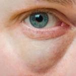 Elege van a duzzadt- táskás szemekből? Ezt próbálja ki