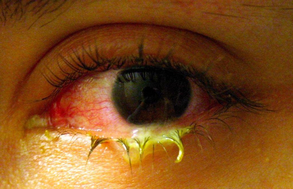 mata merah berlendir