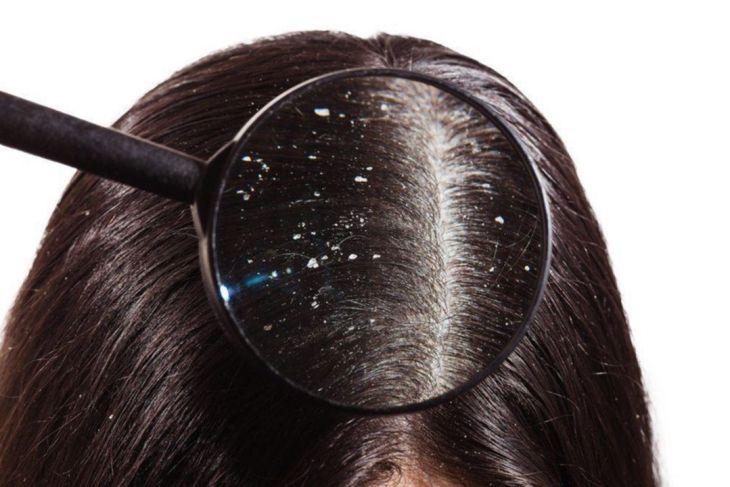 Tips Mengatasi Masalah Ketombe Pada Rambut