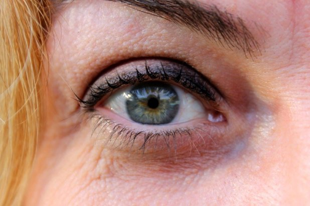 Signs of Aging around the Eyes