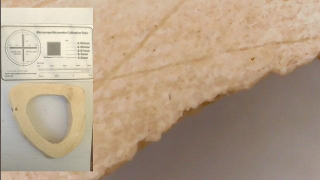 hueso visto en microscopio usb