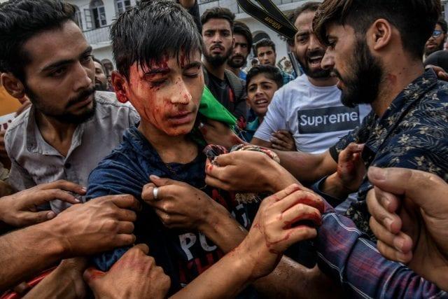 (طفل في الرابعة عشرة من عمره أصيب برصاصة أطلقتها القوات الحكومية خلال احتجاجات الجمعة في سريناجار، يوم 13 سبتمبر/أيلول)