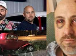 American Hot Rod Star Duane Mayer Fell Of His Ford Coupe At 25 MPH 11