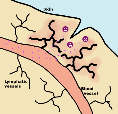 inflammation - the blood and lymphatic flows increase in the area