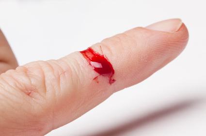 Laceración en un dedo