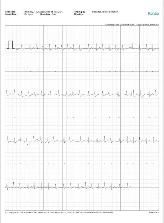 TitaniumGeek IMG 1B3F7248665A 1 AliveCor Kardia Mobile ECG Review Gear Reviews Medical Journals Sports Articles  medicine heart Cardiac atrial fibrillation   Image of IMG 1B3F7248665A 1