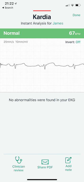 TitaniumGeek IMG AFE60F4DD04B 1 AliveCor Kardia Mobile ECG Review Gear Reviews Medical Journals Sports Articles  medicine heart Cardiac atrial fibrillation   Image of IMG AFE60F4DD04B 1