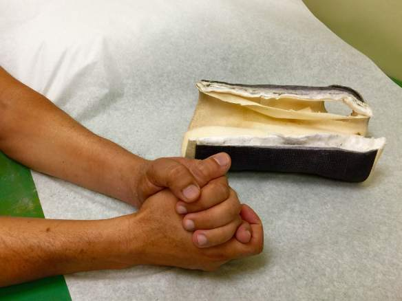 """Las manos se vuelven a reconocer, luego de que ortopedistas de UCI Irvine removieran el """"casting""""."""