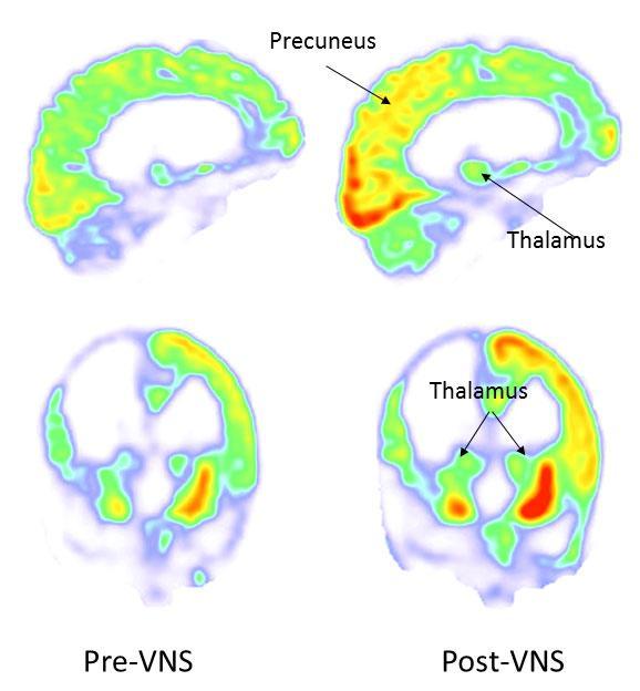 Штучна стимуляція нервів повернула людину з вегетативного стану