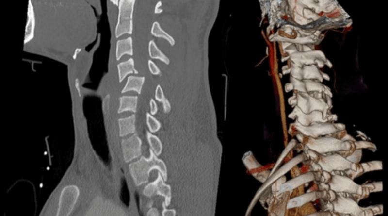 Spine Injury Treatment