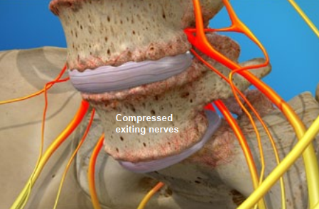 compressed exiting nerves