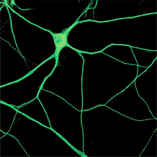 "Microtubules the ""tape archive"" of the brain?"