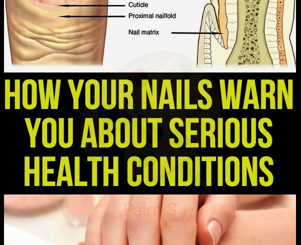 how-your-nails-warn-you-about-serious-health-conditions