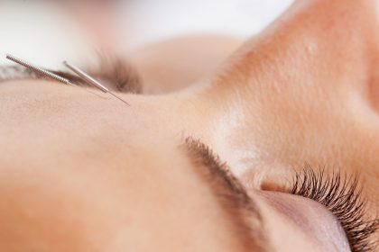 """Is Cosmetic Acupuncture Actually """"Natural Botox""""?"""