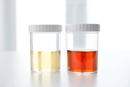 This Urine Colour Chart Reveals Exactly What Your Pee Colour Means