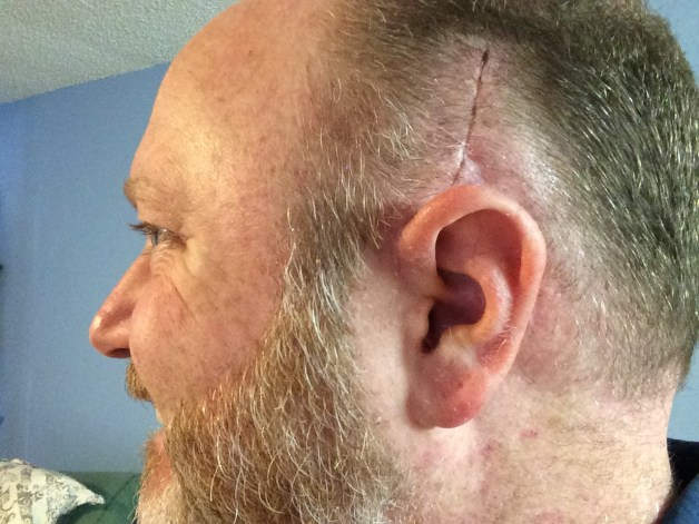 left ear surgery 3-15-2015