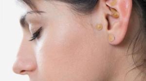 Auriculoterapia para adelgazar