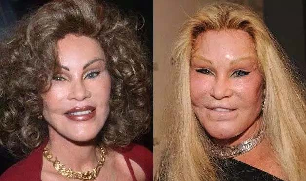 8 Plastic Surgeries That Made Headline After Going Wrong