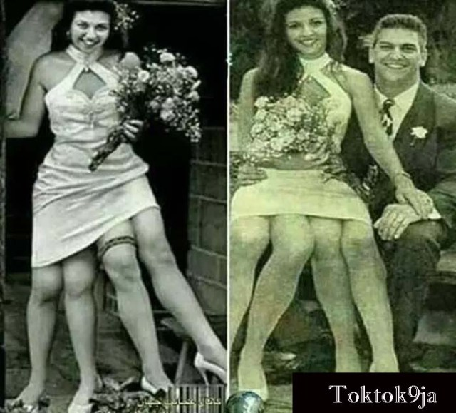Meet the Lady with Four Legs and Two Genitals - Josephine Mryle