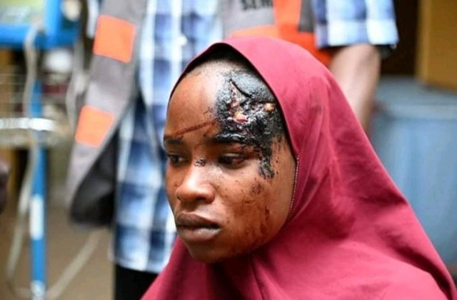 """""""I Watched My Sister Die""""- Woman Who Survived Boko Haram Resent Attack In Yobe Shares Her Story"""