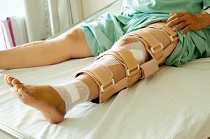 ha a karok és a lábak fájnak rheumatoid arthritis radiology findings