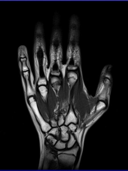 Как проходит обследование МРТ руки и показания