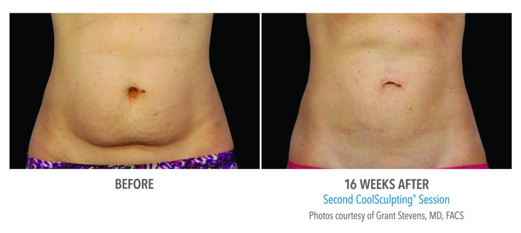 Female-Abdomen Before & After