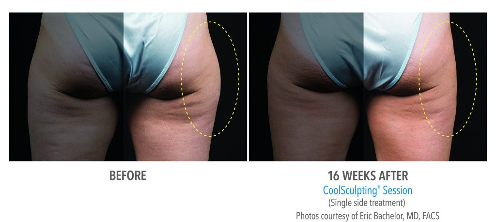 Female Outer Thigh Before & After