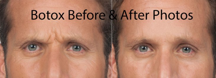 Botox Before and After photos